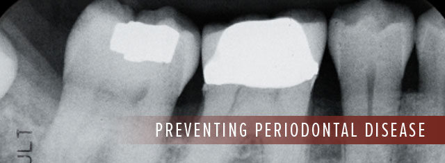 Periodonatal Disease North Seattle WA Best Top Affordable Family Dentist