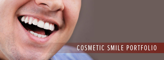 Smile Gallery Cosmetic Dentistry North Seattle WA Best Top Affordable Family Dentist