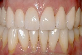 Crowns Dentures Implants North Seattle WA Best Top Affordable Family Dentist